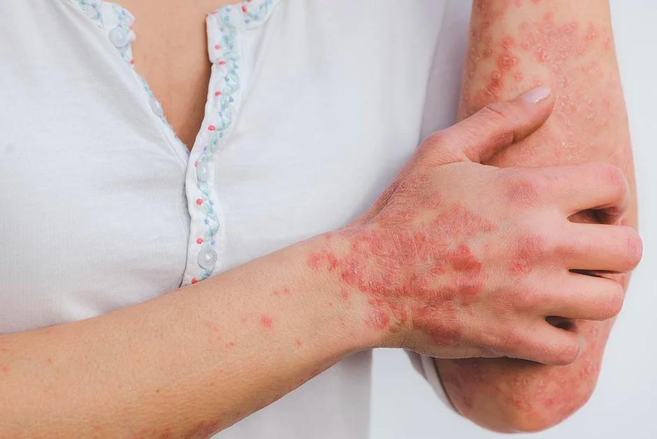 Инфекционные, паразитарные и аллергические болезни кожи