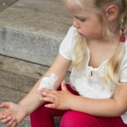 Нейродермит у ребенка