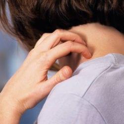 Сыпь на шее у взрослого