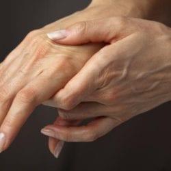 Воспаление кожи на руках