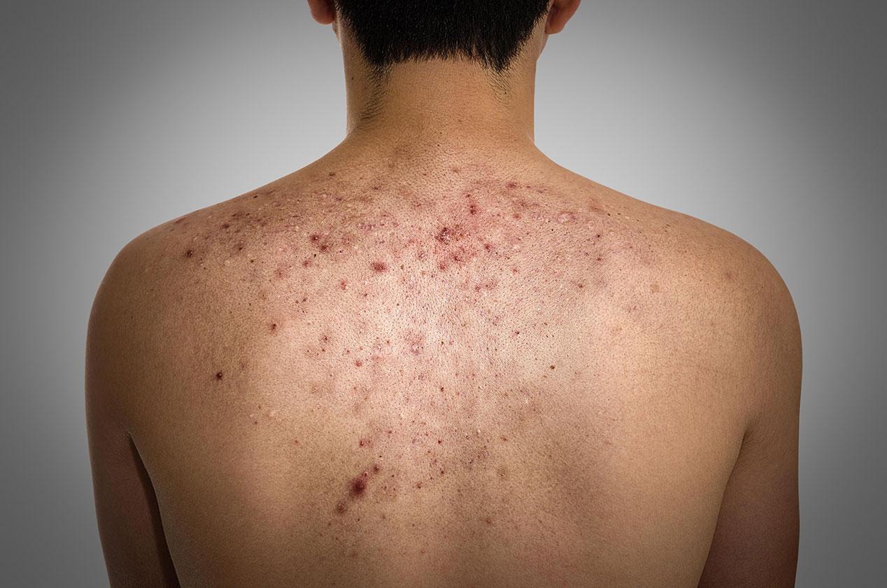 Прыщи на спине у женщины и мужчины основные причины