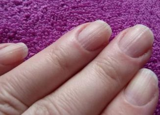 Почему ногти на руках ребристые вдоль