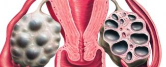 Поликистоз яичников, как распознать