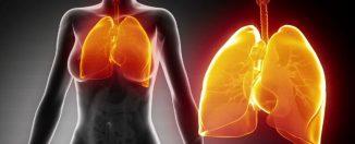 Пневмония, советы здорового образа жизни