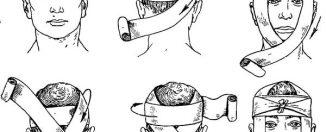 Как оказать помощь при травме головы