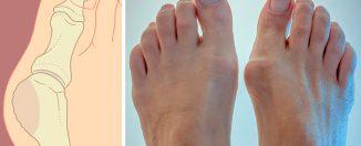 Косточка на ногах, причины и лечение
