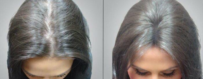 Мезотерапия для волос дома: как делать самостоятельно, советы