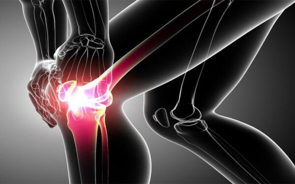 Хондромаляция коленного сустава и что это такое: признаки, лечение