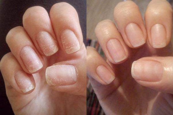 Ногти после снятия гель-лака