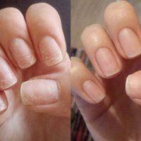 Как восстановить ногти после наращивания (гель-лака)