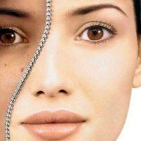 Как отбелить кожу лица народными средствами