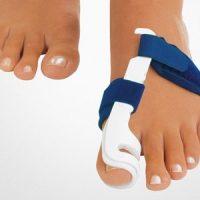 Болезнь ног. Как бороться с «косточкой»?