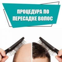 Основные методы пересадки волос